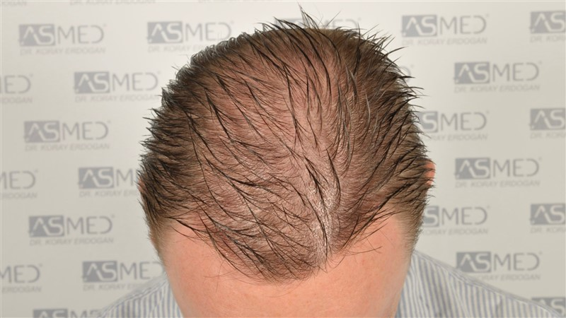 //www.hairtransplantfue.org/asmed-hair-transplant-result/upload/Norwood6/5009-grafts-FUE/SecondFUE/1%20year/wet/_DSC4238.jpg