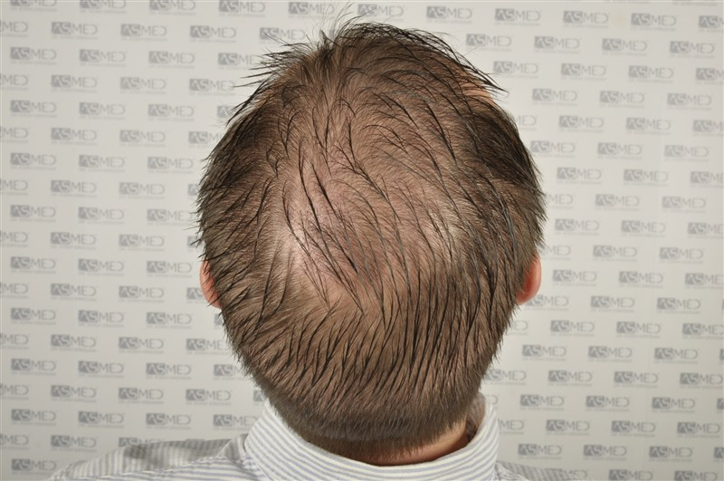 //www.hairtransplantfue.org/asmed-hair-transplant-result/upload/Norwood6/5009-grafts-FUE/SecondFUE/1%20year/wet/_DSC4246.jpg