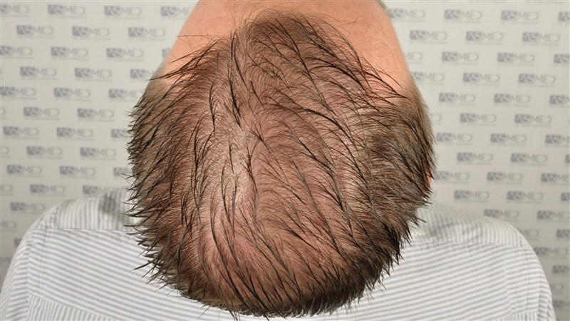 //www.hairtransplantfue.org/asmed-hair-transplant-result/upload/Norwood6/5009-grafts-FUE/SecondFUE/1%20year/wet/_DSC4247.jpg
