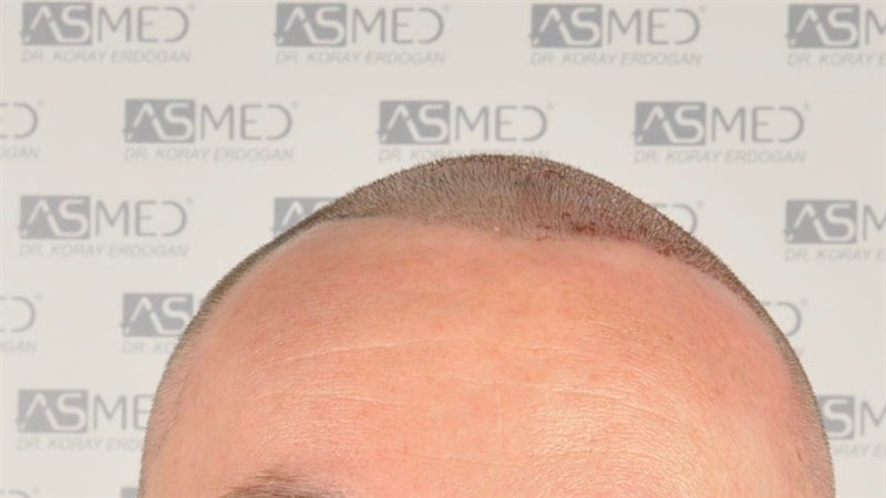 //www.hairtransplantfue.org/asmed-hair-transplant-result/upload/Norwood6/5009-grafts-FUE/SecondFUE/operation/_DSC6162.jpg