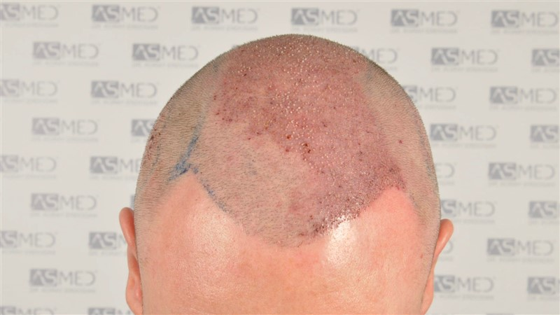 //www.hairtransplantfue.org/asmed-hair-transplant-result/upload/Norwood6/5009-grafts-FUE/SecondFUE/operation/_DSC6163.jpg