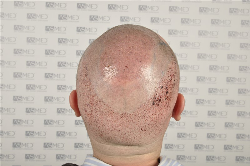 //www.hairtransplantfue.org/asmed-hair-transplant-result/upload/Norwood6/5009-grafts-FUE/SecondFUE/operation/_DSC6171.jpg