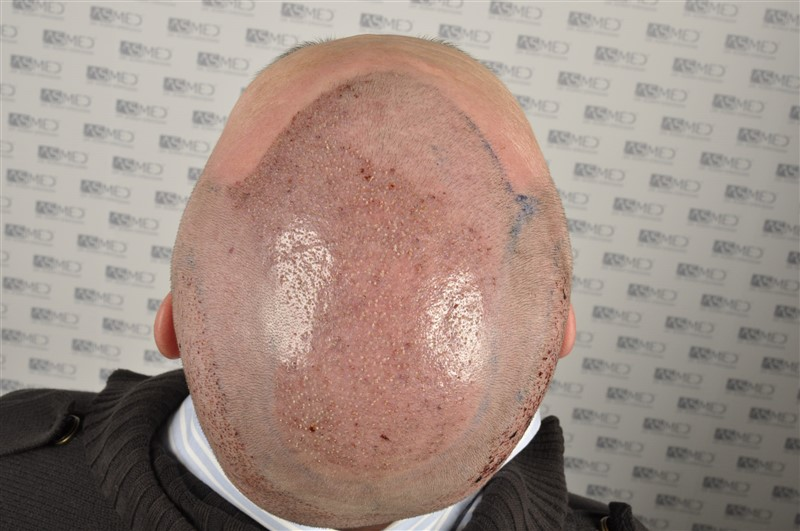 //www.hairtransplantfue.org/asmed-hair-transplant-result/upload/Norwood6/5009-grafts-FUE/SecondFUE/operation/_DSC6172.jpg