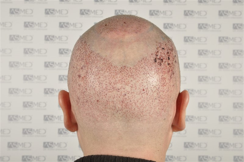 //www.hairtransplantfue.org/asmed-hair-transplant-result/upload/Norwood6/5009-grafts-FUE/SecondFUE/operation/_DSC6174.jpg