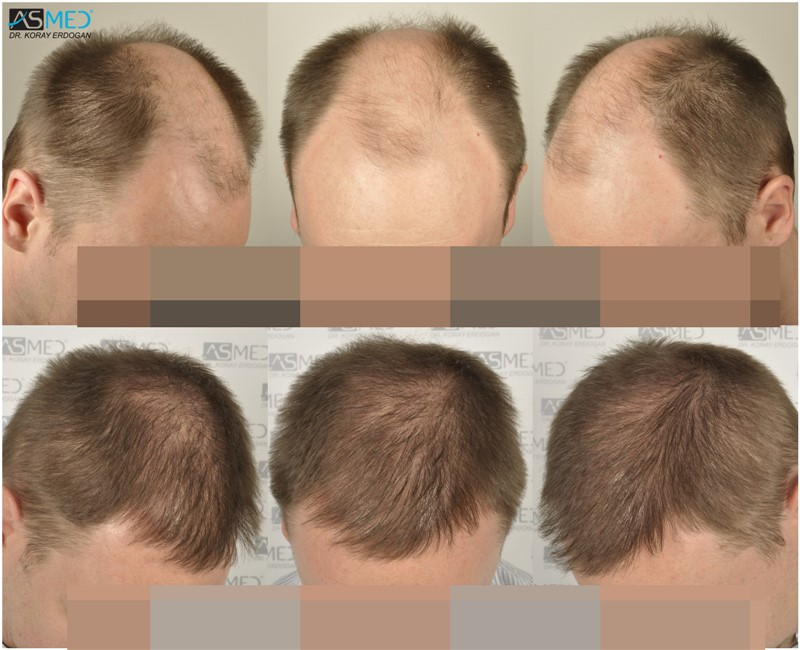 //www.hairtransplantfue.org/asmed-hair-transplant-result/upload/Norwood6/5009-grafts-FUE/colaje_kuru.jpg