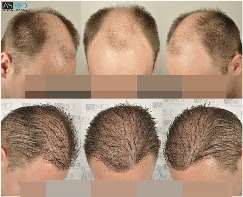 Dr Koray Erdogan - 7213 grafts FUE (2 Operations)