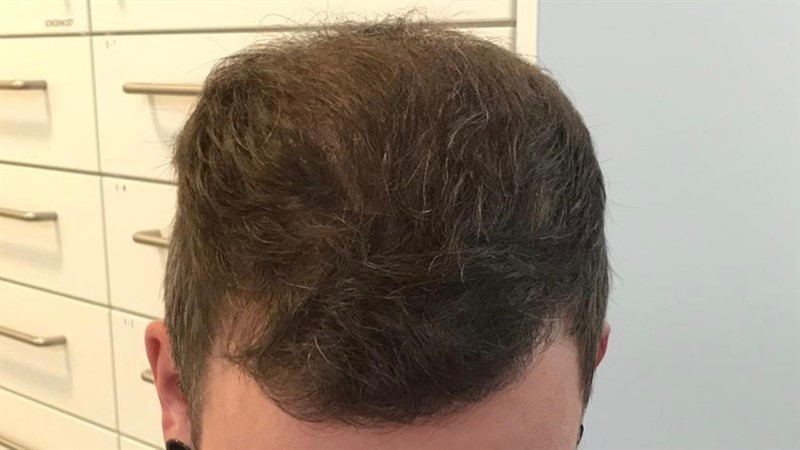 https://www.hairtransplantfue.org/asmed-hair-transplant-result/upload/Norwood6/5021-grafts-FUE/6months/AFTER1.jpg