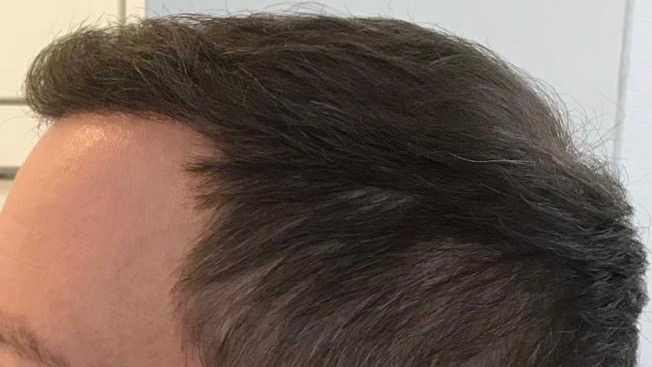 https://www.hairtransplantfue.org/asmed-hair-transplant-result/upload/Norwood6/5021-grafts-FUE/6months/AFTER2.jpg