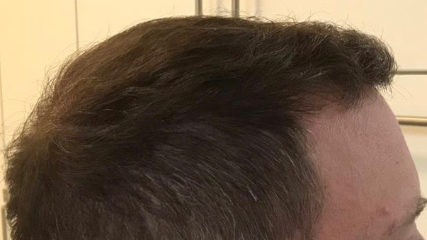 https://www.hairtransplantfue.org/asmed-hair-transplant-result/upload/Norwood6/5021-grafts-FUE/6months/AFTER3.jpg