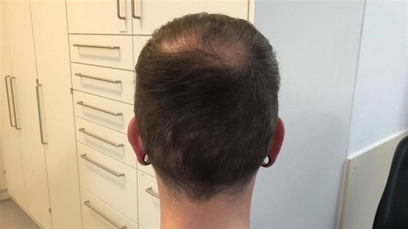 https://www.hairtransplantfue.org/asmed-hair-transplant-result/upload/Norwood6/5021-grafts-FUE/6months/AFTER4.jpg