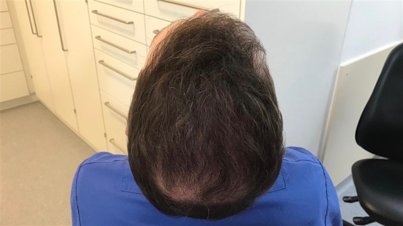 https://www.hairtransplantfue.org/asmed-hair-transplant-result/upload/Norwood6/5021-grafts-FUE/6months/AFTER5.jpg