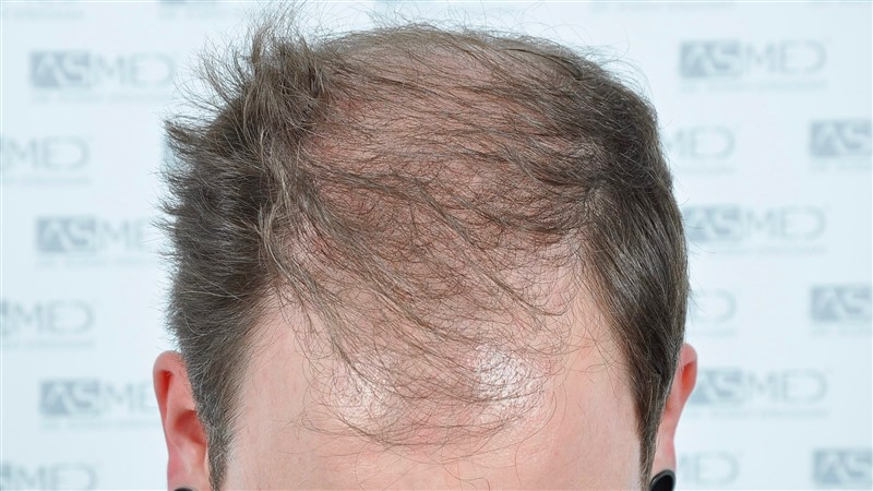https://www.hairtransplantfue.org/asmed-hair-transplant-result/upload/Norwood6/5021-grafts-FUE/before/BEFORE1.jpg