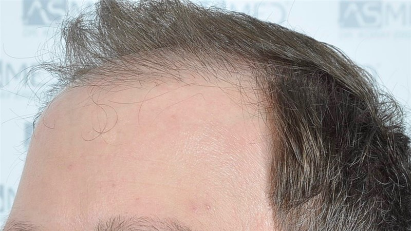 https://www.hairtransplantfue.org/asmed-hair-transplant-result/upload/Norwood6/5021-grafts-FUE/before/BEFORE2.jpg
