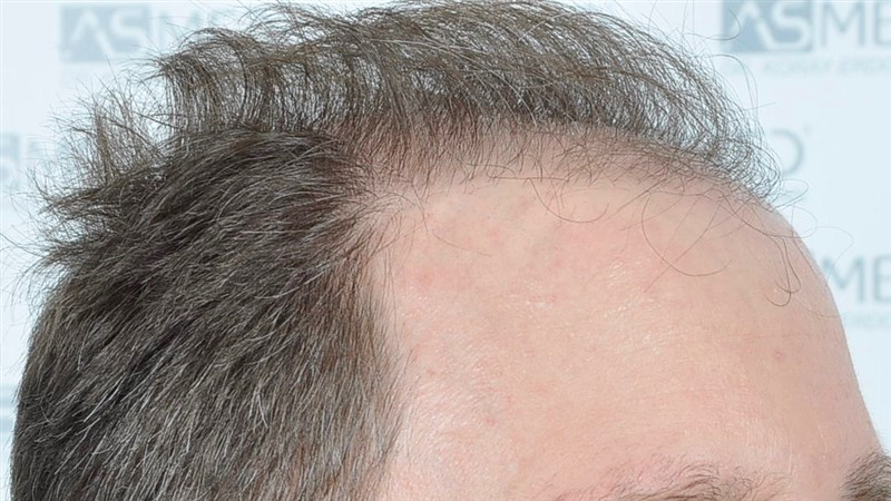 https://www.hairtransplantfue.org/asmed-hair-transplant-result/upload/Norwood6/5021-grafts-FUE/before/BEFORE3.jpg