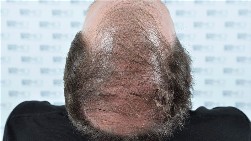 https://www.hairtransplantfue.org/asmed-hair-transplant-result/upload/Norwood6/5021-grafts-FUE/before/BEFORE4.jpg