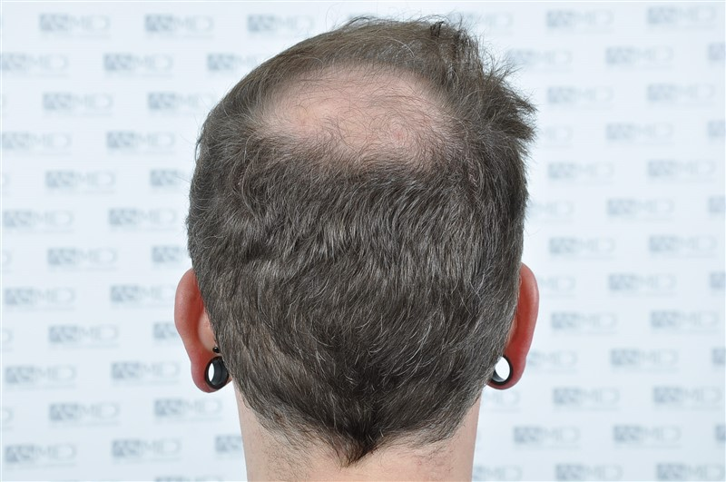 https://www.hairtransplantfue.org/asmed-hair-transplant-result/upload/Norwood6/5021-grafts-FUE/before/BEFORE5.jpg