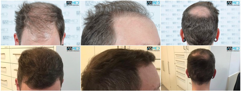 https://www.hairtransplantfue.org/asmed-hair-transplant-result/upload/Norwood6/5021-grafts-FUE/kolaj.jpg