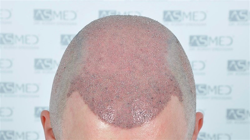 https://www.hairtransplantfue.org/asmed-hair-transplant-result/upload/Norwood6/5021-grafts-FUE/operation/OP1.jpg