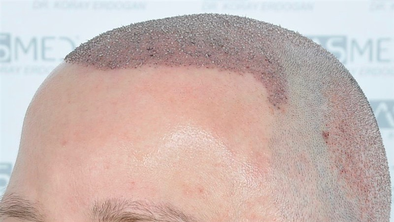 https://www.hairtransplantfue.org/asmed-hair-transplant-result/upload/Norwood6/5021-grafts-FUE/operation/OP2.jpg