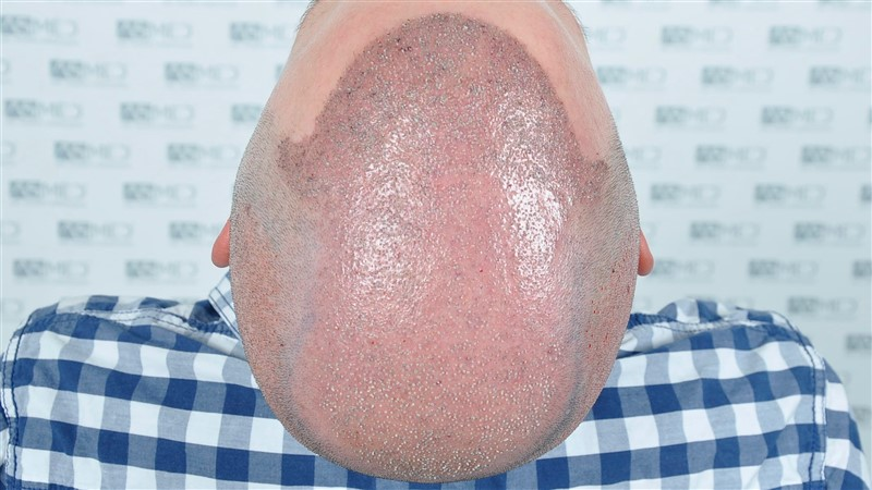 https://www.hairtransplantfue.org/asmed-hair-transplant-result/upload/Norwood6/5021-grafts-FUE/operation/OP4.jpg