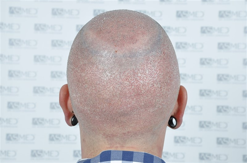 https://www.hairtransplantfue.org/asmed-hair-transplant-result/upload/Norwood6/5021-grafts-FUE/operation/OP5.jpg