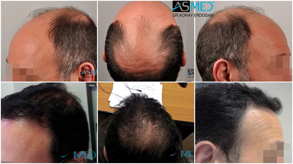 Dr Koray Erdogan - 5100 grafts FUE