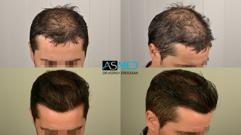 Dr Koray Erdogan - 2820 grafts FUE
