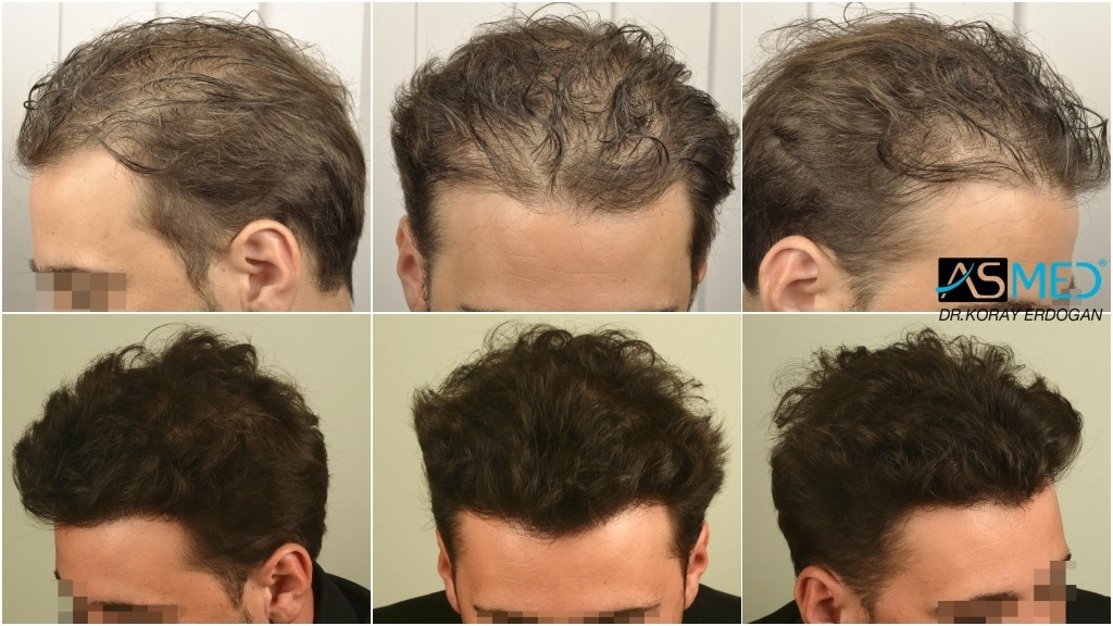 Dr Koray Erdogan - 3458 grafts FUE Repair