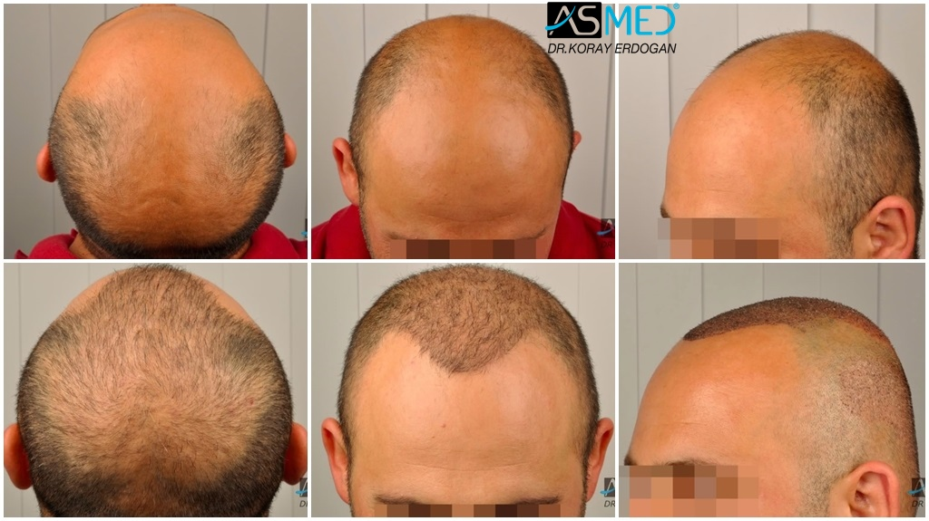 Dr Koray Erdogan - 4312 grafts FUE