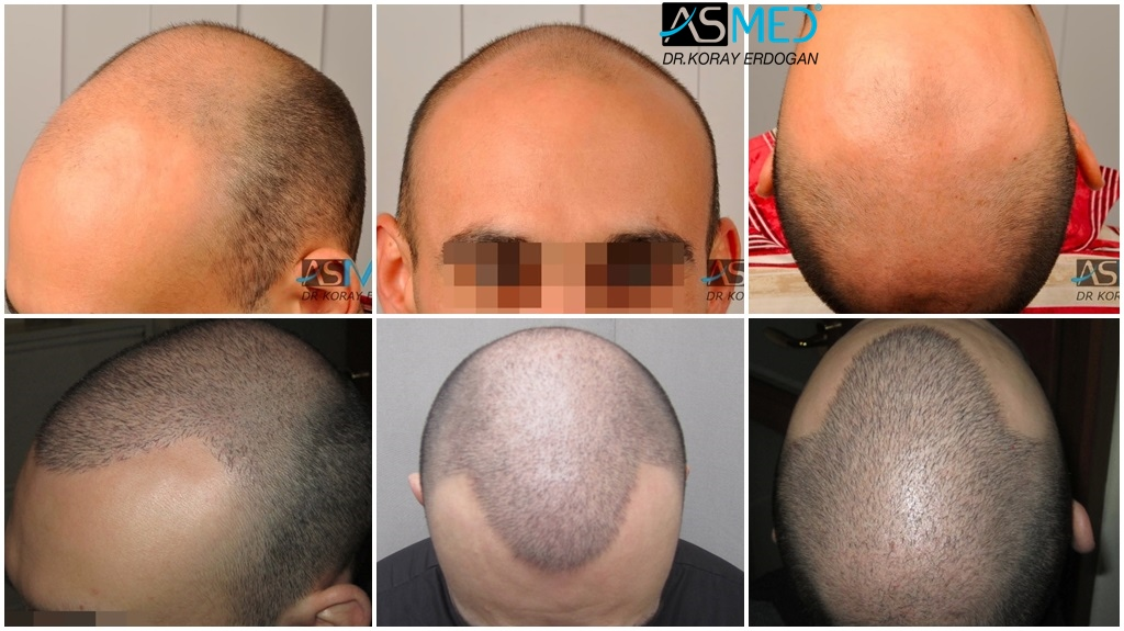 Dr Koray Erdogan - 4528 grafts FUE (3028 FUE + 1500 FUE)