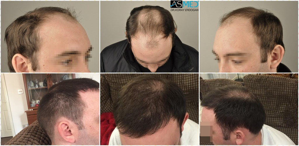 Dr Koray Erdogan - 5000 Grafts Fue