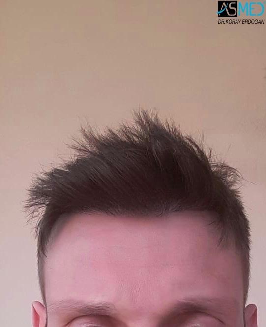https://www.hairtransplantfue.org/asmed-hair-transplant-result/upload/norwood4/4613-grafts-FUE/1year/1.jpg