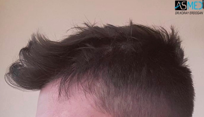 https://www.hairtransplantfue.org/asmed-hair-transplant-result/upload/norwood4/4613-grafts-FUE/1year/3.jpg