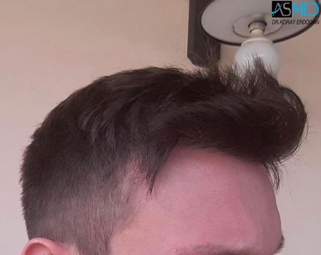 https://www.hairtransplantfue.org/asmed-hair-transplant-result/upload/norwood4/4613-grafts-FUE/1year/4.jpg