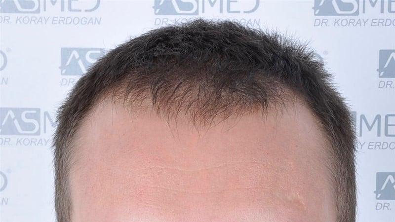 https://www.hairtransplantfue.org/asmed-hair-transplant-result/upload/norwood4/4613-grafts-FUE/before/_DSC5113.jpg