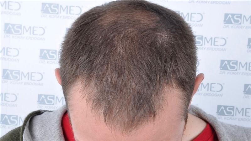 https://www.hairtransplantfue.org/asmed-hair-transplant-result/upload/norwood4/4613-grafts-FUE/before/_DSC5114.jpg