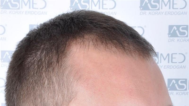https://www.hairtransplantfue.org/asmed-hair-transplant-result/upload/norwood4/4613-grafts-FUE/before/_DSC5115.jpg