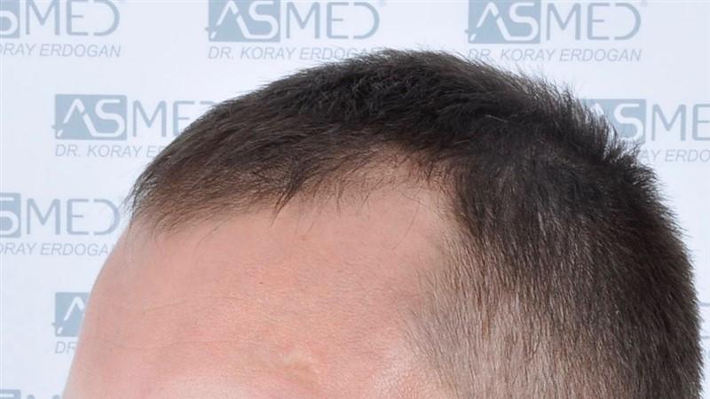 https://www.hairtransplantfue.org/asmed-hair-transplant-result/upload/norwood4/4613-grafts-FUE/before/_DSC5117.jpg