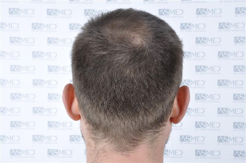 https://www.hairtransplantfue.org/asmed-hair-transplant-result/upload/norwood4/4613-grafts-FUE/before/_DSC5123.jpg