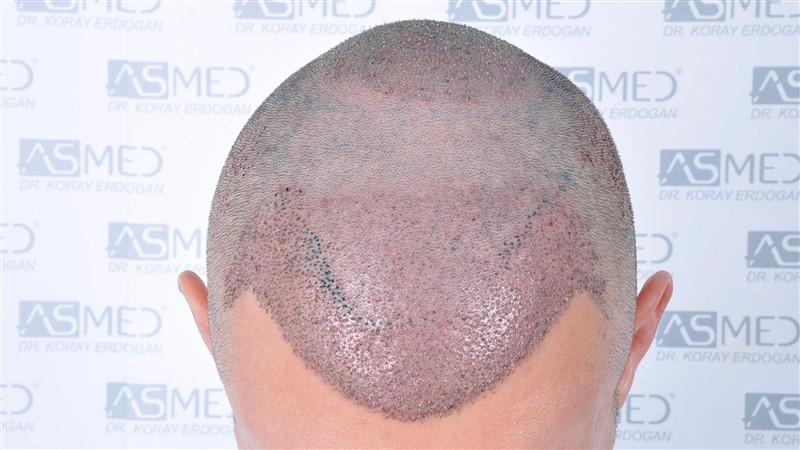 https://www.hairtransplantfue.org/asmed-hair-transplant-result/upload/norwood4/4613-grafts-FUE/operation/_DSC5532.jpg