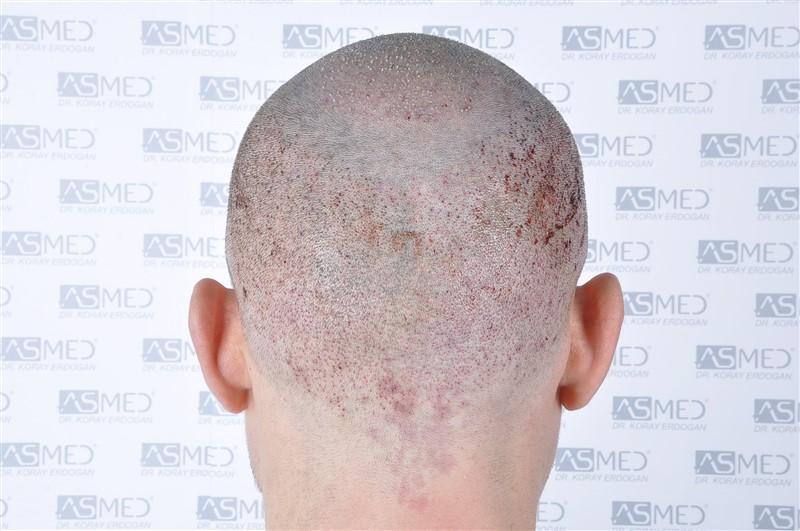https://www.hairtransplantfue.org/asmed-hair-transplant-result/upload/norwood4/4613-grafts-FUE/operation/_DSC5537.jpg