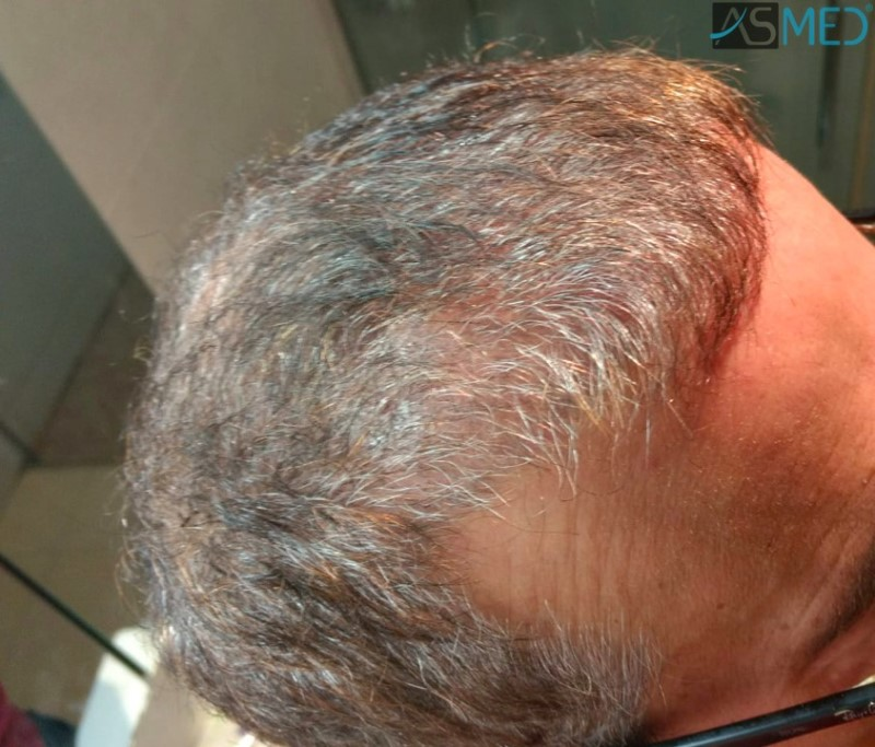 https://www.hairtransplantfue.org/asmed-hair-transplant-result/upload/norwood4/5022-grafts-FUE-2/3months/WhatsApp%20Image%202018-12-06%20at%2022.05.18(1)_V2.jpg