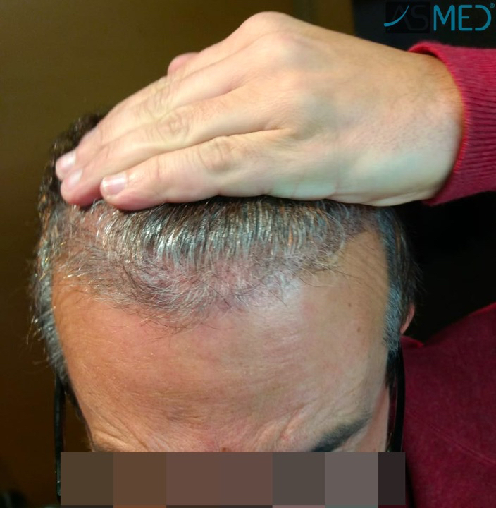 https://www.hairtransplantfue.org/asmed-hair-transplant-result/upload/norwood4/5022-grafts-FUE-2/3months/WhatsApp%20Image%202018-12-06%20at%2022.05.20(1)_V2.jpg