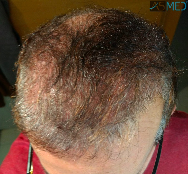 https://www.hairtransplantfue.org/asmed-hair-transplant-result/upload/norwood4/5022-grafts-FUE-2/3months/WhatsApp%20Image%202018-12-06%20at%2022.05.20_V2.jpg