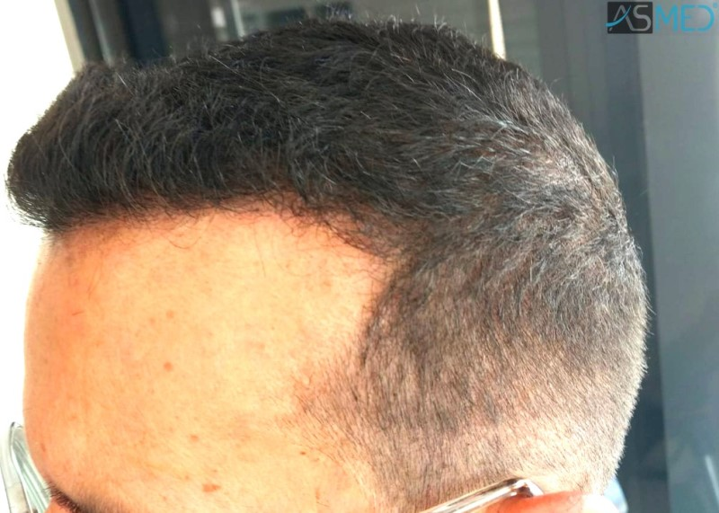 https://www.hairtransplantfue.org/asmed-hair-transplant-result/upload/norwood4/5022-grafts-FUE-2/8month/WhatsApp%20Image%202019-05-25%20at%2010.41.43(3)_V2.jpg