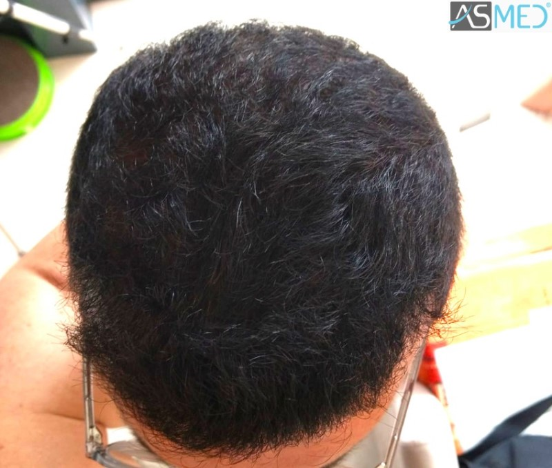 https://www.hairtransplantfue.org/asmed-hair-transplant-result/upload/norwood4/5022-grafts-FUE-2/8month/WhatsApp%20Image%202019-05-25%20at%2010.41.45_V2.jpg