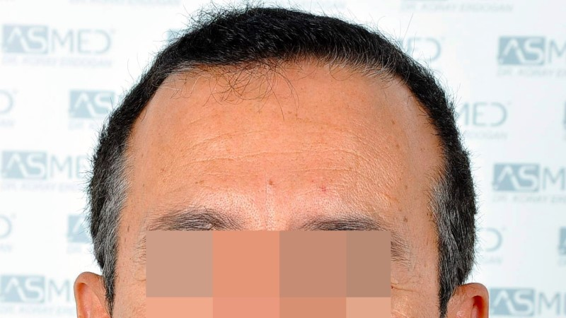 https://www.hairtransplantfue.org/asmed-hair-transplant-result/upload/norwood4/5022-grafts-FUE-2/before/_DSC2408_V2.jpg
