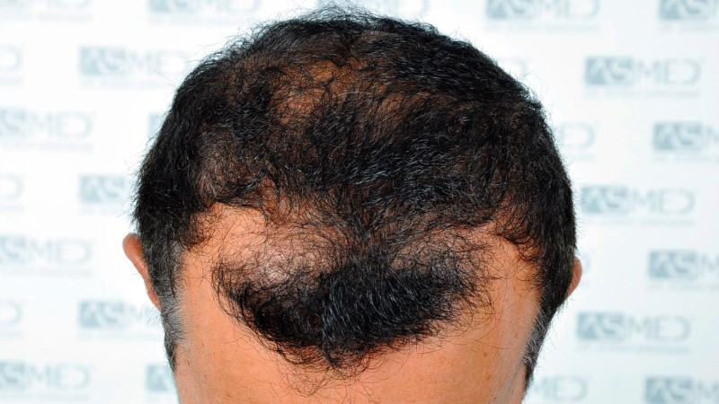 https://www.hairtransplantfue.org/asmed-hair-transplant-result/upload/norwood4/5022-grafts-FUE-2/before/_DSC2409_V2.jpg