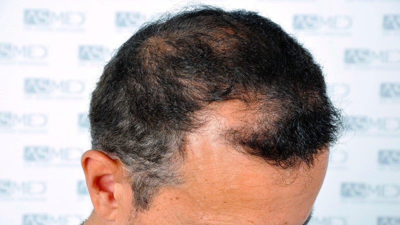 https://www.hairtransplantfue.org/asmed-hair-transplant-result/upload/norwood4/5022-grafts-FUE-2/before/_DSC2411_V2.jpg