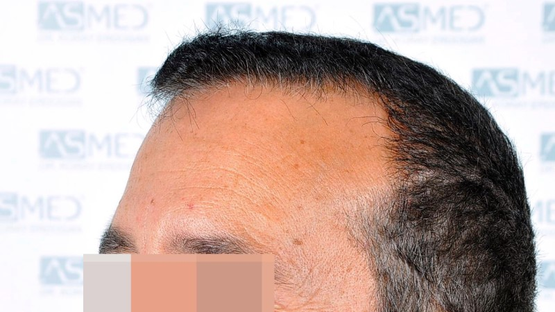 https://www.hairtransplantfue.org/asmed-hair-transplant-result/upload/norwood4/5022-grafts-FUE-2/before/_DSC2412_V2%2015.50.09.jpg